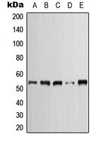 CPA1657-100ul - Cytokeratin 7