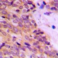 CPA1662-100ul - Cytokeratin 14