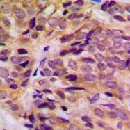 CPA1663-100ul - Cytokeratin 16