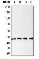 CPA1665-100ul - Cytokeratin 18