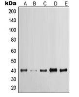 CPA1668-100ul - Cytokeratin 19