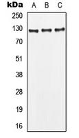 CPA1677-100ul - CD295 / Leptin Receptor