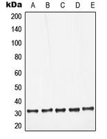 CPA1679-100ul - Galectin-3