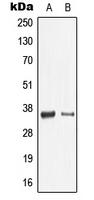 CPA1680-100ul - Galectin-9