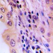 CPA1688-100ul - LIPC / Hepatic lipase