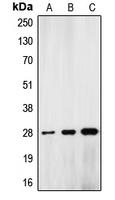 CPA1691-100ul - Lamin-A/C (LMNA)