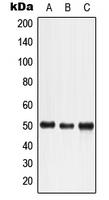 CPA1698-100ul - LTBR / TNFR3