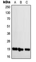 CPA1785-100ul - NBL1