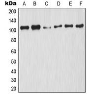 CPA1798-100ul - NF-kB p105 / p50