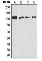 CPA1799-100ul - NF-kB p105 / p50