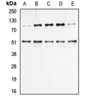 CPA1800-100ul - NF-kB p105 / p50