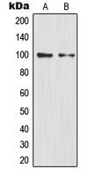 CPA1802-100ul - NFKB2 / NF-kappa-B p100/p52