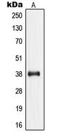 CPA1825-100ul - Nucleophosmin