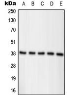 CPA1826-100ul - Nucleophosmin