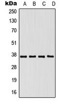 CPA1858-100ul - PCBP1