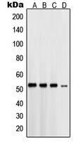 CPA1958-100ul - Presenilin-1