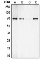 CPA2033-100ul - RPS6KB1 / STK14A