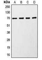 CPA2034-100ul - RPS6KB1 / STK14A