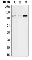 CPA2074-100ul - SGLT2 / SLC5A2