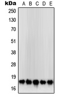 CPA2092-100ul - Superoxide Dismutase 1 / SOD1