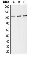 CPA2160-100ul - CD141 / THBD
