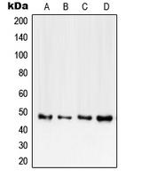 CPA2178-100ul - CD120b / TNFR2
