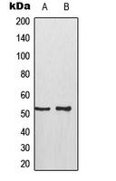 CPA2185-100ul - TP53 / p53