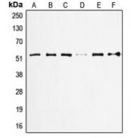 CPA2186-100ul - TP53 / p53