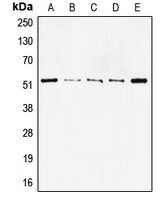 CPA2187-100ul - TP53 / p53