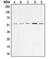 CPA2188-100ul - TP53 / p53