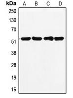 CPA2189-100ul - TP53 / p53