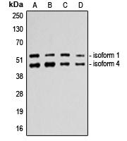 CPA2190-100ul - TP53 / p53