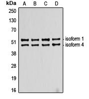 CPA2191-100ul - TP53 / p53