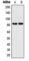 CPA2217-100ul - CD106 / VCAM1