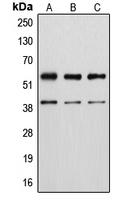 CPA2227-100ul - Vimentin