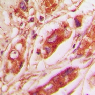 CPA2228-100ul - Vimentin