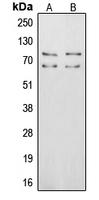 CPA2229-100ul - Vitronectin