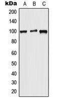 CPA2231-100ul - Wolframin / WFS1