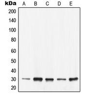 CPA2241-100ul - 14-3-3 protein epsilon