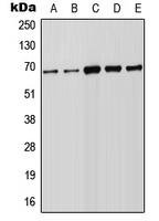 CPA2280-100ul - FOXN1