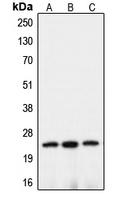 CPA2347-100ul - Claudin-10 / CLDN10