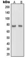 CPA2389-100ul - Netrin-1