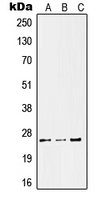 CPA2525-100ul - KLK11 / Kallikrein-11