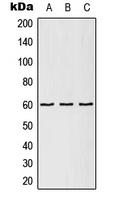 CPA2557-100ul - CCT5 / TCP1 epsilon