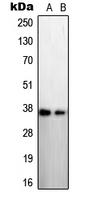 CPA2617-100ul - STEAP / STEAP1