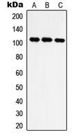 CPA2714-100ul - Isoleucyl-tRNA synthetase / IARS2