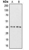 CPA2799-100ul - Apolipoprotein L6 / APOL6