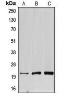 CPA2804-100ul - DNAL1