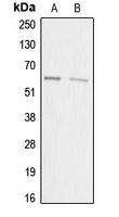 CPA2815-100ul - Acrosin-binding protein / ACRBP