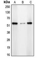 CPA2851-100ul - CDYL2